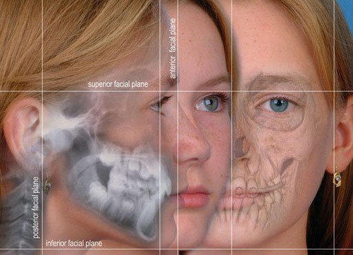 superior facial plane, inferior facial plane, anterior facial plane, posterior facial plane