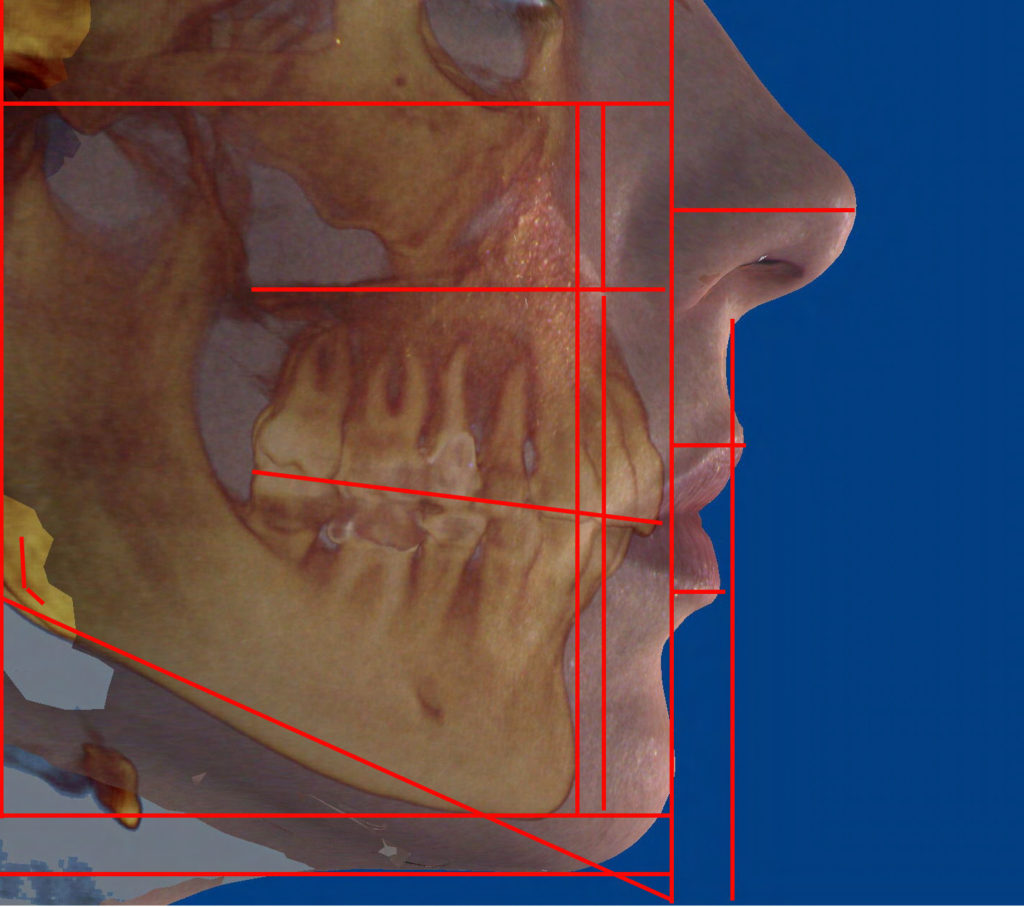 Cheek / Chin Augmentation rendering