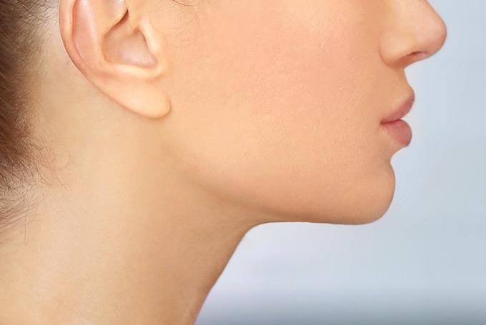 Learn about Chin Surgery