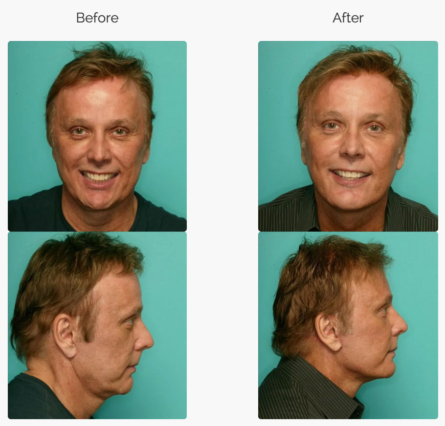 Chin Surgery Before and After Results