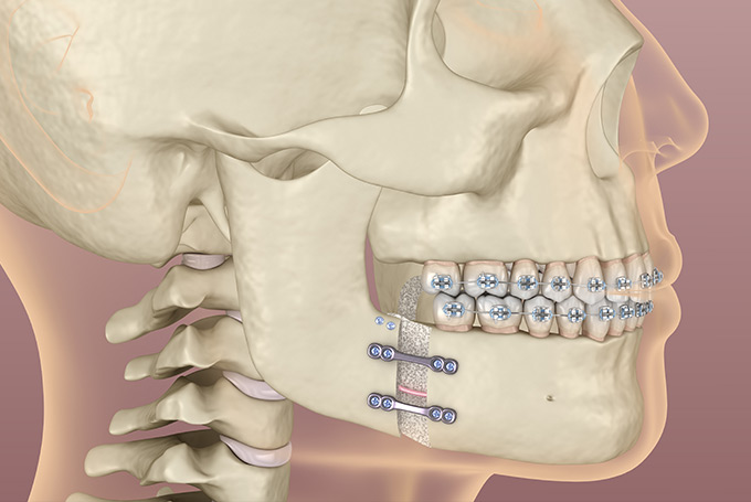 Learn about Jaw Surgery