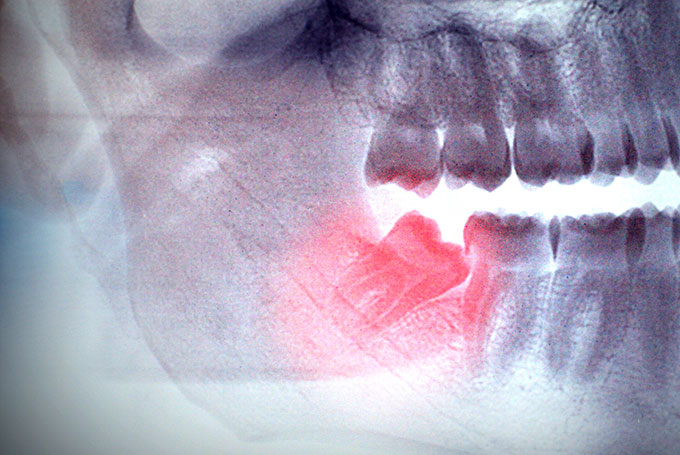 Learn about Wisdom Tooth Removal