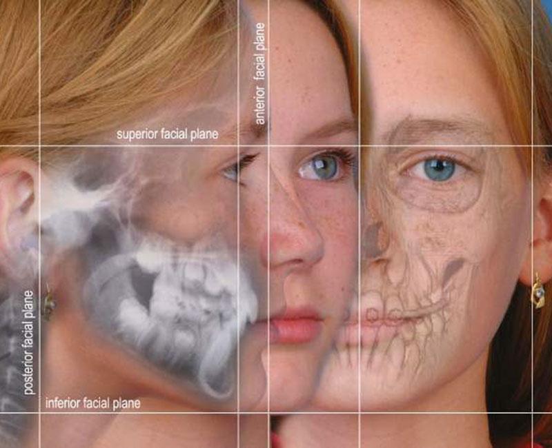 Jaw Surgery Diagram