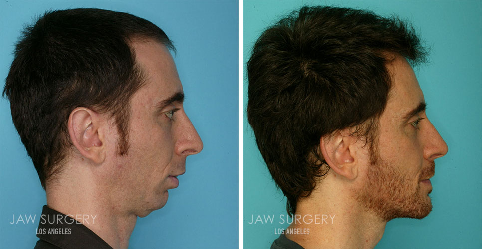 Before and After Patient Photo - Jaw Surgery