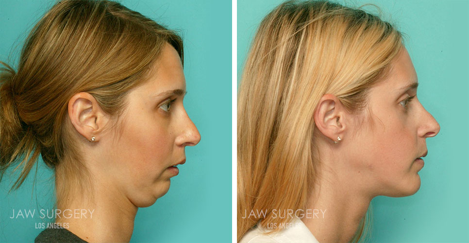 Before and After Patient Photo - Jaw Surgery 2