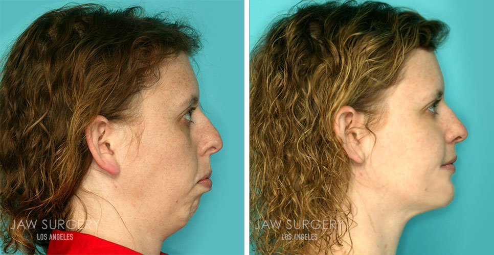 before and after tmj surgery scar