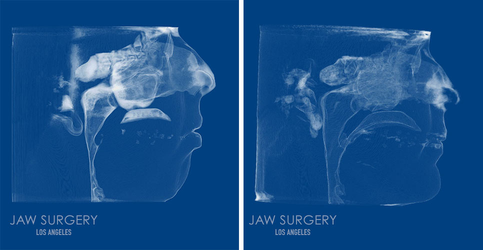 Before and After Patient Photo - Jaw Surgery 3 xRay