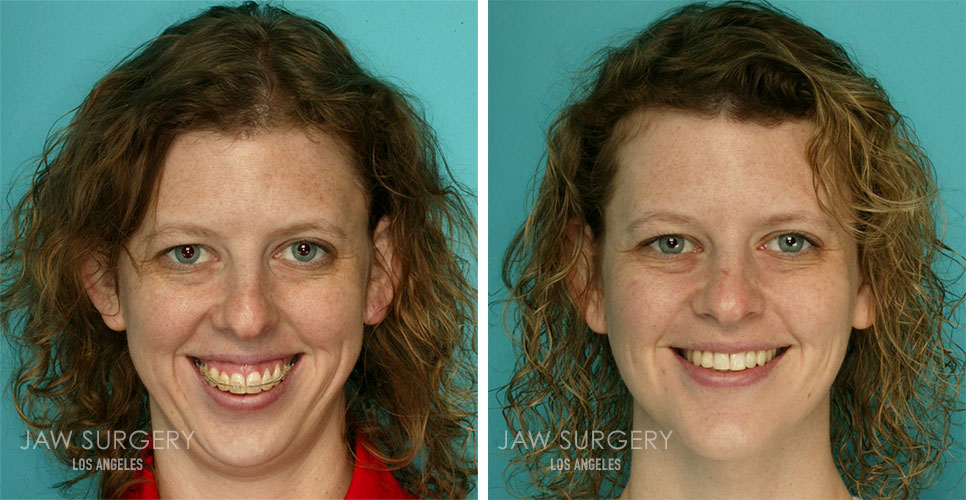 Before and After Patient Photo - Jaw Surgery 3 Frontal View