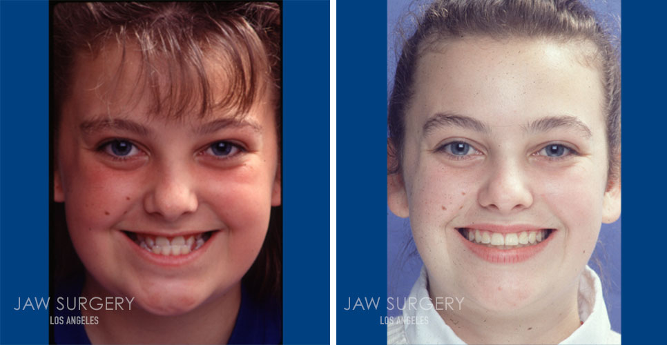 Before and After Patient Photo - Jaw Surgery 4