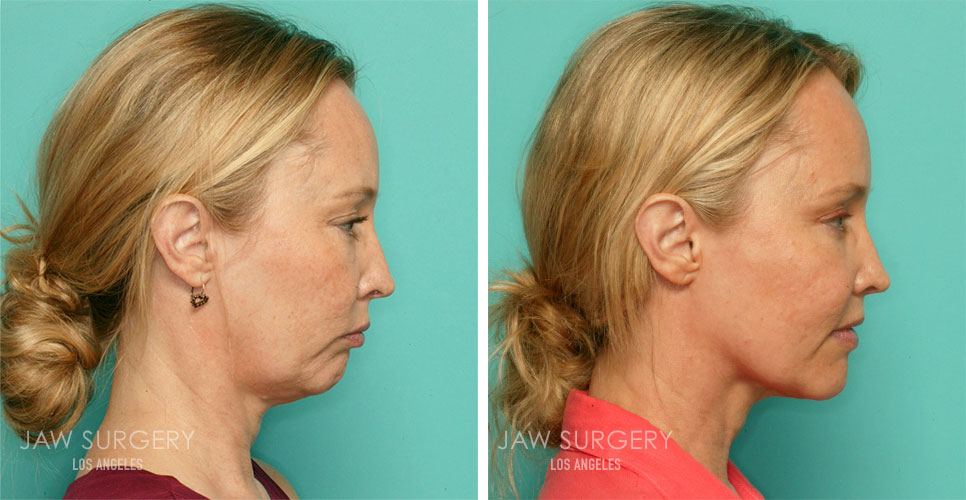 Before and After Patient Photo - Jaw Surgery 5