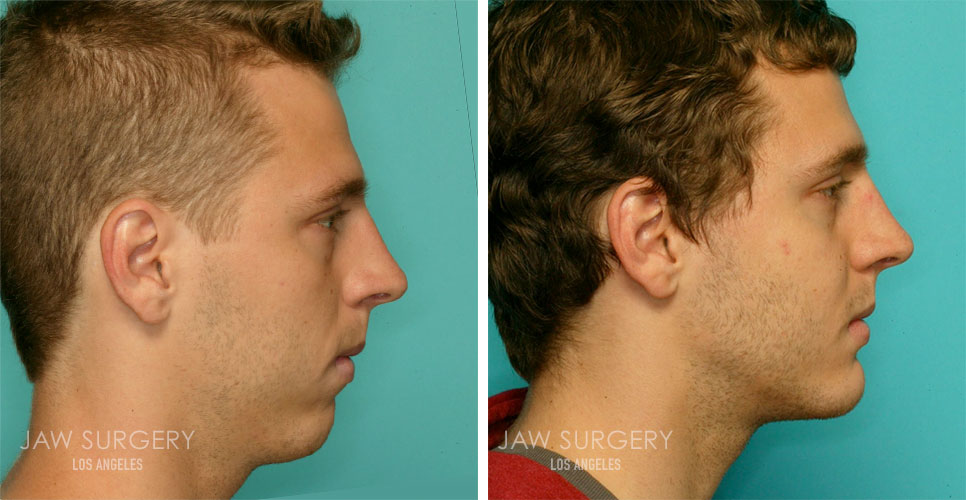 Before and After Patient Photo - Jaw Surgery 6