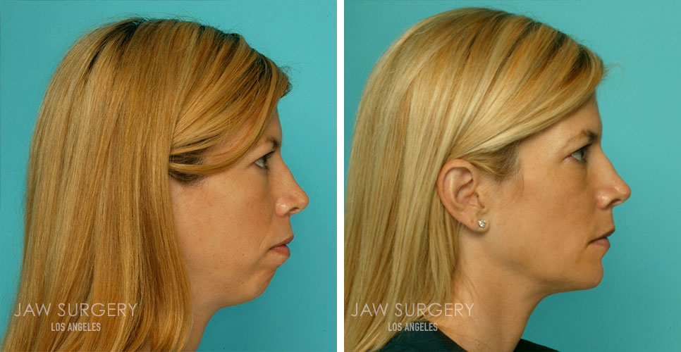 Before and After Patient Photo - Jaw Surgery 7