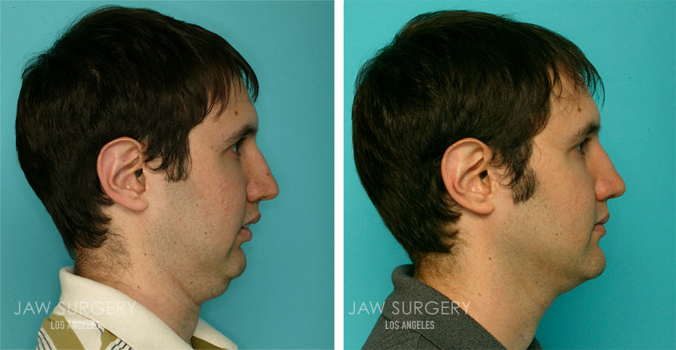 Before and After Patient Photo - Jaw Surgery 8
