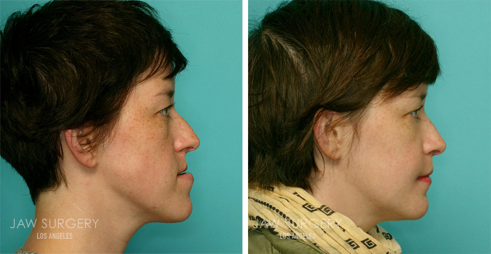Before and After Patient Photo - Jaw Surgery 9