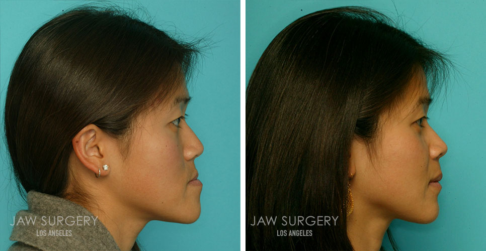 Before and After Patient Photo - Jaw Surgery 10