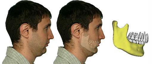 Face with Bimaxillary retrusion