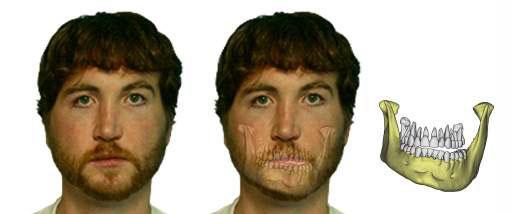 Facial asymmetry illustrated