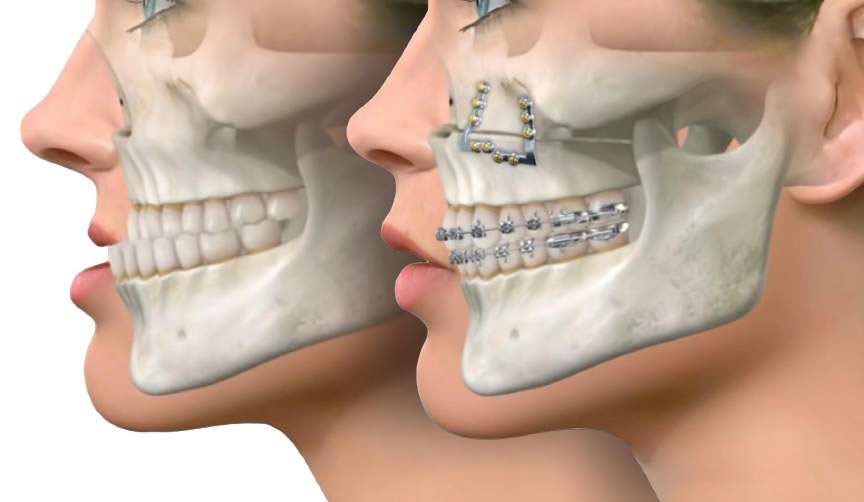 Le Fort I - Jaw Surgery