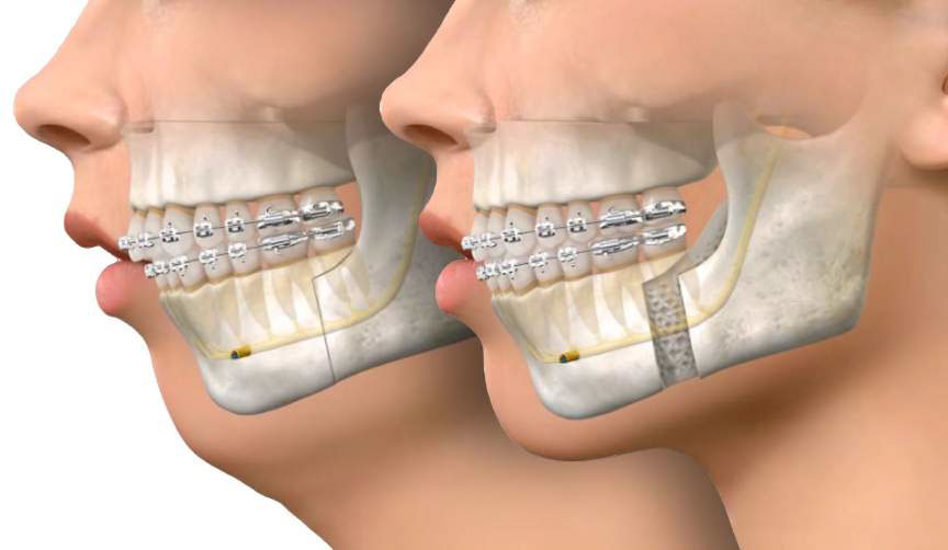 BSSO - Jaw Surgery