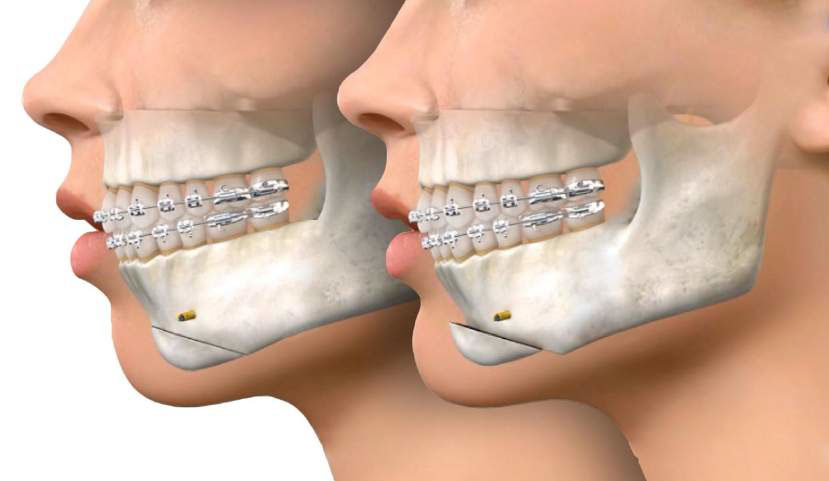 Genioplasty and GenioPaully - Jaw Surgery