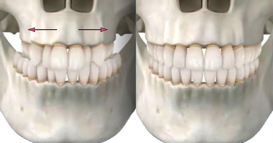 SARME - Jaw Surgery
