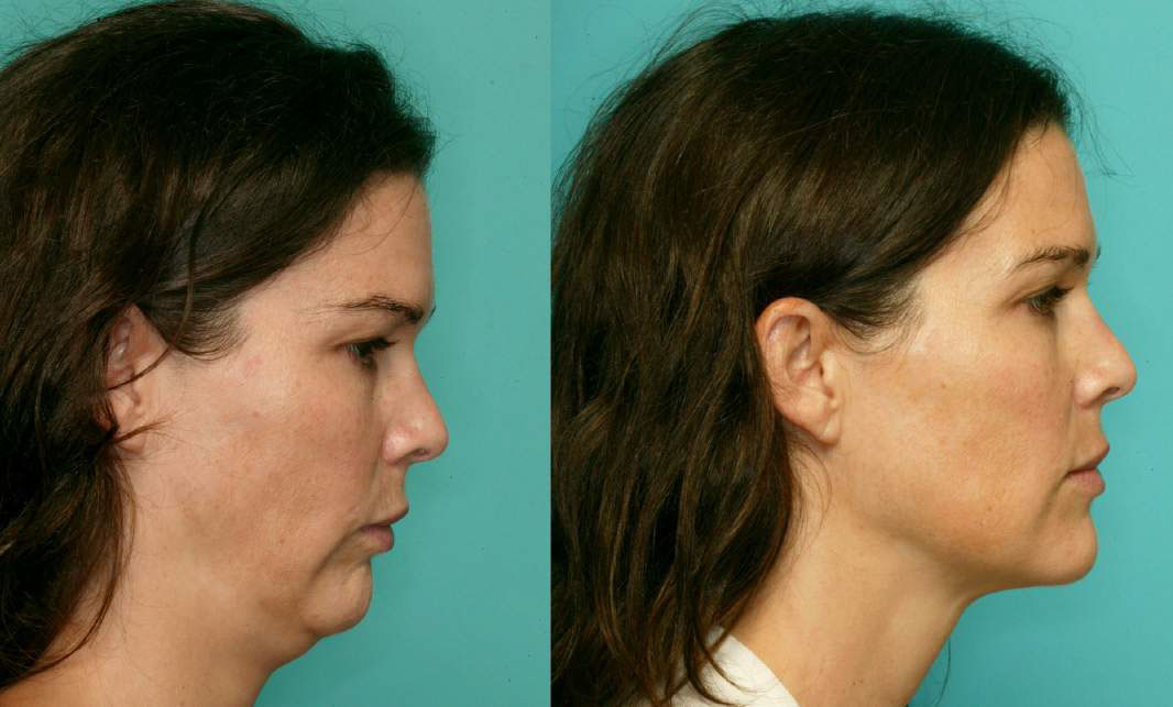 What Is Jaw Surgery Los Angeles Ca Jaw Surgery La