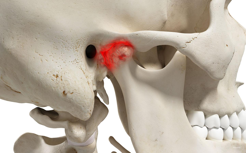 Temporomandibular Joints Surgery Tmjs In Los Angeles Ca Jaw