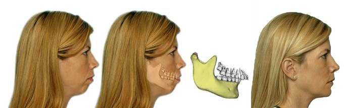Correction of  Small Lower Jaw, before and after results