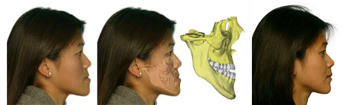 Correction of Small Upper Jaw before and after results