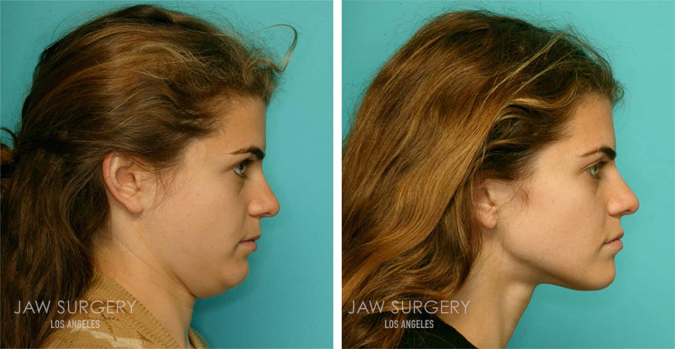 Before and After Patient Photo - Jaw Surgery 11