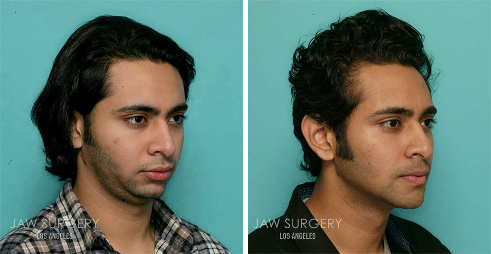 Before and After Patient Photo - Jaw Surgery 12