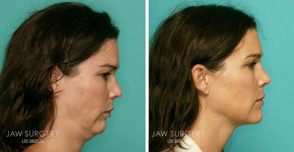 Before and After Patient Photo - Jaw Surgery 14