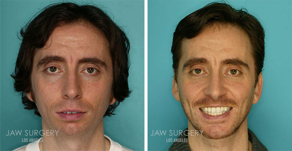 Before and After Patient Photo - Jaw Surgery 16