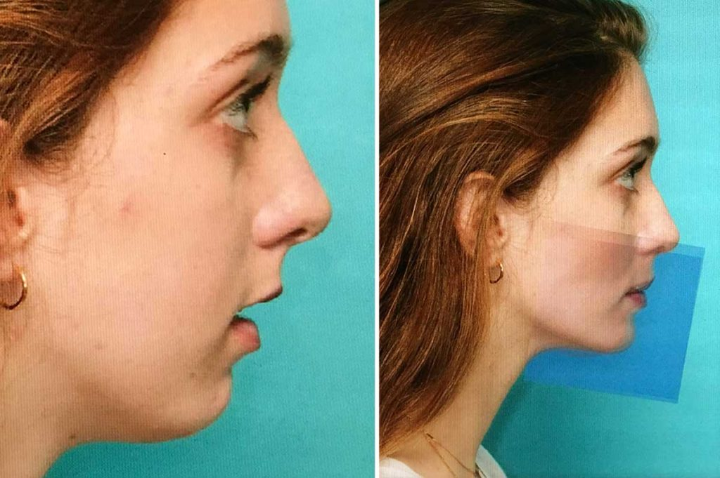 Jaw Surgery Before and After