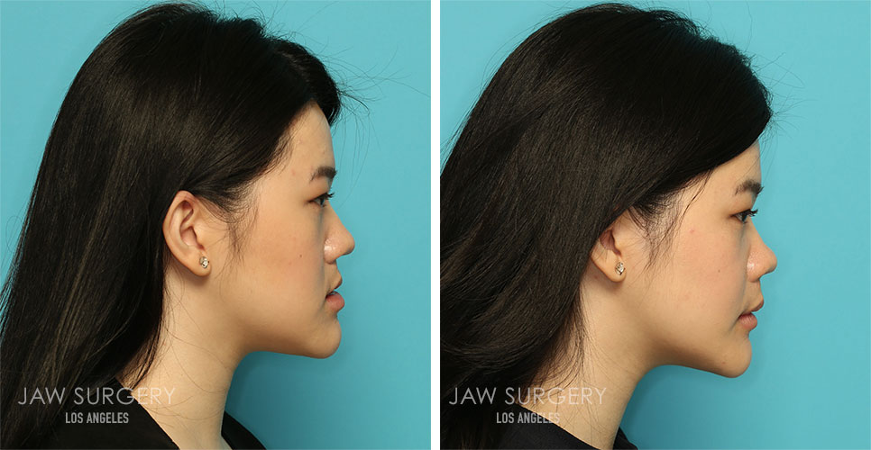 Before and After Patient Photo - Jaw Surgery 19