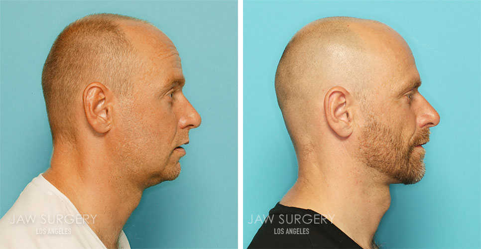 Before and After Patient Photo - Jaw Surgery 20