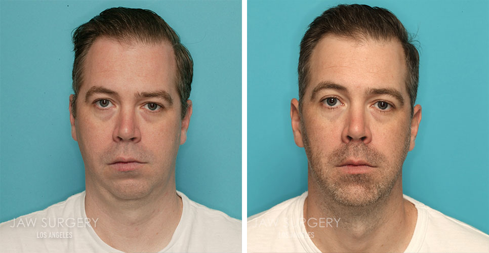 Before and After Patient Photo - Jaw Surgery 21